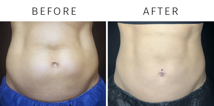 Before_after_coolsculpting
