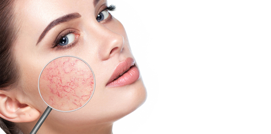 Rosacea: What It Is and How to Manage It